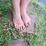 Carly's feet post-leeches